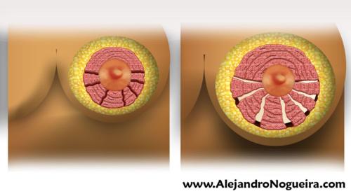 Técnica de Rees-Aston para el tratamiento de las mamas tuberosas