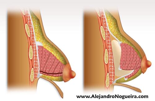 Técnica de Mandrekas para el tratamiento de las mamas tuberosas