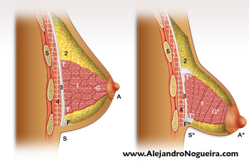 Anatomía de la mama normal y de la mama tuberosa - leyenda