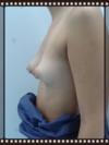 Caso clínico (lateral izquierda)