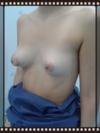 Caso clínico (oblicua izquierda)