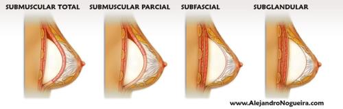 Planos de colocación de los implantes mamarios