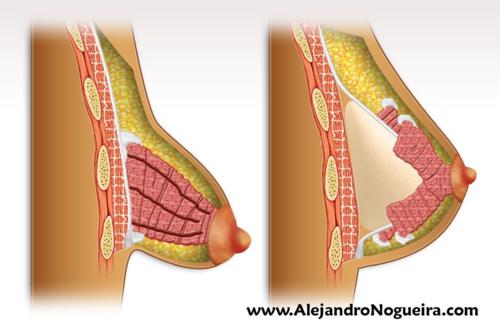 Técnica de Nogueira para el tratamiento de las mamas tuberosas