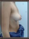 Caso clínico (lateral derecha)
