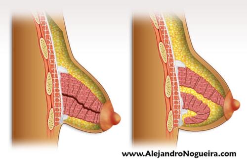 Técnica de Ribeiro para el tratamiento de las mamas tuberosas