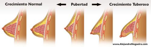Crecimiento de la mama tuberosa durante el desarrollo puberal