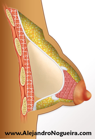Doble mama en implante mamario con mama tuberosa no tratada
